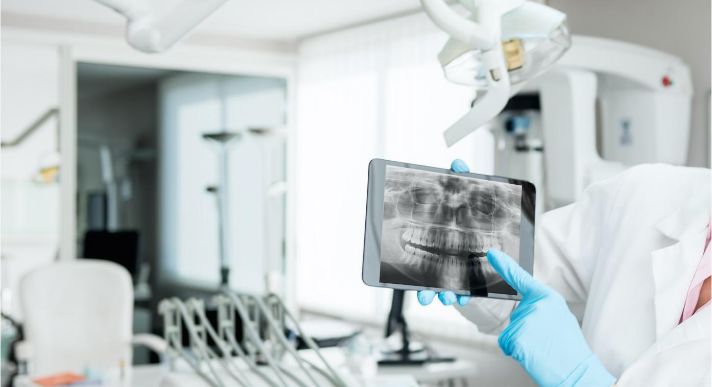 Digital Dental X-rays San Dimas